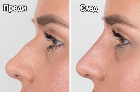 корекция на нос с филър