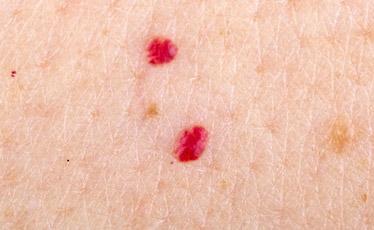 премахване на кожни образувания с лазер варна