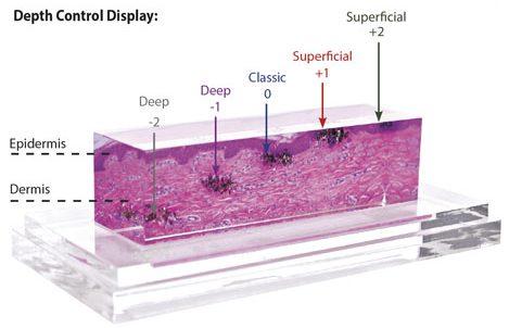 4д лазерно подмладяване