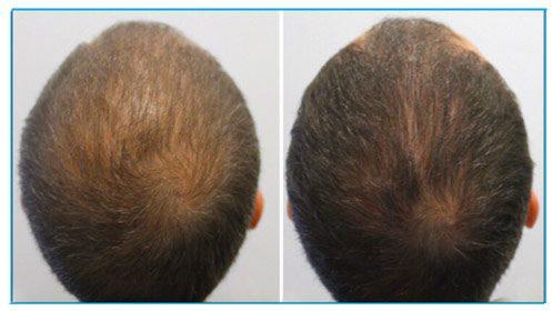 мезотерапия на коса
