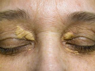 кожни образувания по главата