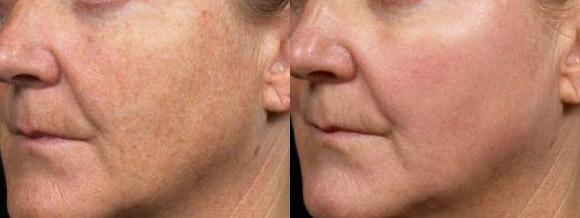 лазерен пилинг на лицето