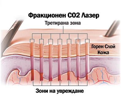 CO2 лазер фраксел варна