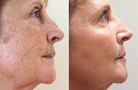 пигментни петна по лицето премахване