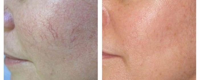 премахване на спукани капиляри по лицето