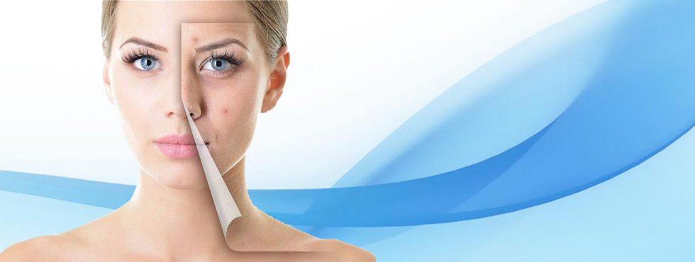 Лазерни терапии за съвършено лице